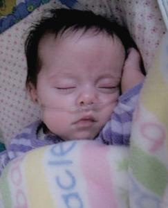 Neonatal Cannula
